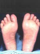 knopper under fødderne