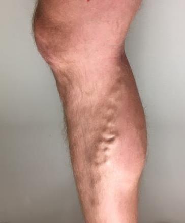 blå blodårer på benene